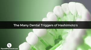 is you hashimoto s caused by dental issues discover triggers that you might not have even