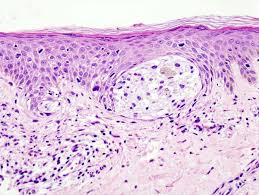 essay on skin cancer background treatment and therapy writework melanoma in skin biopsy h e stain this case represent superficial spreading melanoma