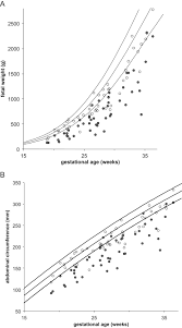 Twin Pregnancy Growth Chart Fetal Growth According To Different Reference Ranges In Twin