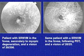 Srnvm | Retina Vitreous Resource Center