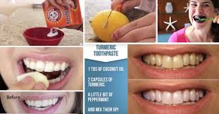 15 super easy homemade teeth whitening remes to get those pearly whites back