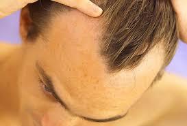 Наследственное облысение у мужчин лечение