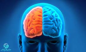سکته مغزی | علائم، علل، انواع و درمان سکته مغزی