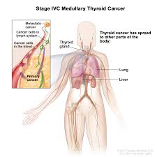 Stage 4 Lung Cancer Survival Rate Thyroid Cancer Treatment Pdq Patient Version National Cancer