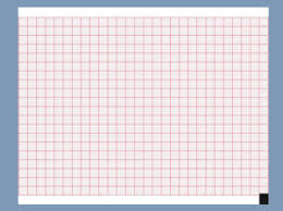 China Ecg Paper Ecg Paper Manufacturers Suppliers Made In China Com