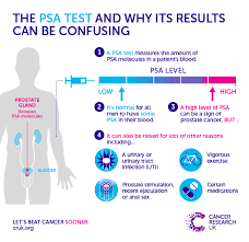 Blood Test Normal Values Chart Uk Why A One Off Psa Test For Prostate Cancer Is Doing Men More