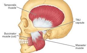 Image result for Temporalis Masseter suboccipitals headaches