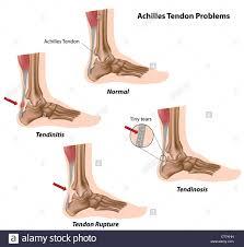 Riparazione del tendine di Achille problemi Foto stock - Alamy