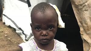 Militia attacks displaced children with machetes in war-ravaged DR Congo    World News