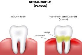The cost estimates below are general reference points. How To Remove Plaque Buildup On Your Teeth