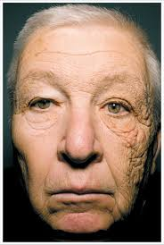 Sun Damage After 28 Years Of Driving A Delivery Truck Pics