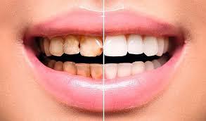 carillas dentales dientes perfectos como los famosos todo sobre las carillas dentales