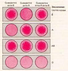 Группы крови человека Отрицательный и положительный резус фактор  Рис Определение группы крови системы АВО