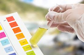 Image result for urine test