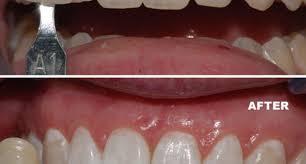 full size of teeth bleaching zoom home teeth whitening intrigue zoom teeth whitening take home
