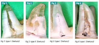Maxillary Second Molar Permanent Maxillary Second Molar Canal Number And Configurations