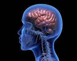Hemorrhagic Strokes Bleeds American Stroke Association