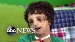 boy living with treacher collins has 53 surgeries by age 11 20 20 part 2