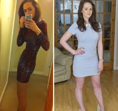 anorexics before and after. 38 Chloe Shelton Became Anorexic At Seven But She Beat The Illness And Is Hoping To Become Beauty Queen Anorexics Before After