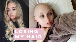 ABOUT LOSING MY HAIR | Olivia Rose Smith - YouTube