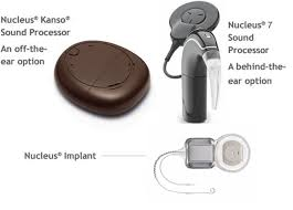 Image result for what does a cochlear implant look like