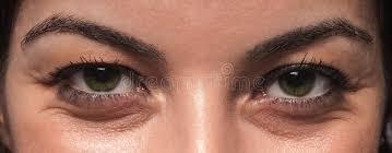 Augenfalten mit 30