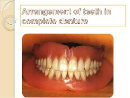 teeth setting arrangement of teeth in complete denture 1 638 jpg cb 1378600046