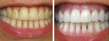 The teeth are a complex part of our body that is made of several layers. Removing Coffee Stains From Teeth Monroe Family Dentistry