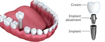 Image result for single tooth implant