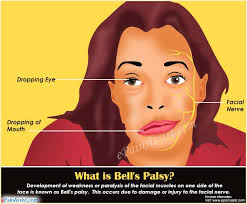 causes of bell s palsy