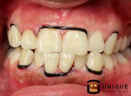 feature diy braces yourcentralvalley ksee and kgpe