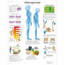 Biology Charts And Posters Osteoporosis Chart