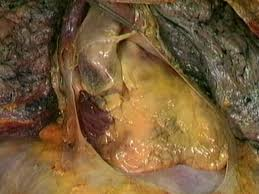 pericardial sac pericardial sac great vessels aclands video atlas of human anatomy