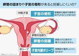子宮 内 膜 ポリープ 手術 費用