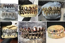 Gold Grill Designs Wall 2 Wall Grillz