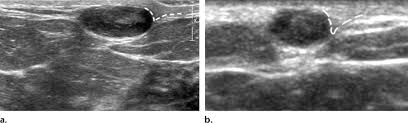 Superficial mass in breast