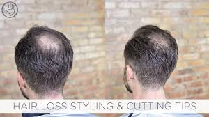 Baldness Hair Style how to cut & style balding or thinning hair youtube 2180 by wearticles.com