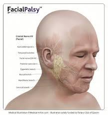 Facial paralysis symptoms images