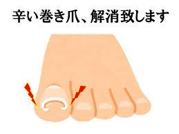 「巻き爪 痛い」の画像検索結果