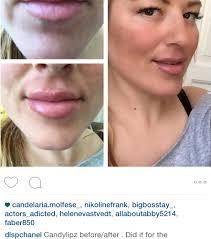 lip plumper diy tool clublilobal com