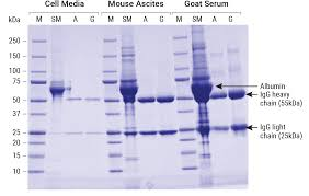 Igg Light Chain Size Magne Protein G And Magne Protein A Beads