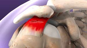 The three basic surgical options for rotator cuff repair are open shoulder repair, arthroscopic surgery, and mini-open surgery