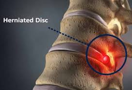 will my herniated disc ever heal