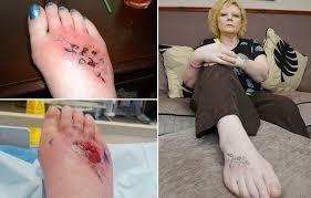 Nebezpečný Suvenýr Tetování Z Dovolené Ji Málem Připravilo O Nohu