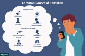 Tonsil Size Chart Causes Diagnosis And Treatment Of Tonsillitis