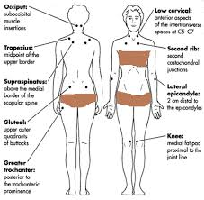 Fibromyalgia Tender Points Chart Pin On Referred Pain