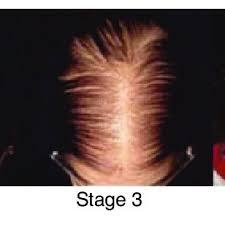 Female Pattern Hair Loss Custom Sinclair Scale For Female Pattern Hair Loss Stage 48 Is Normal