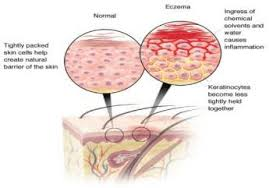 Eczema Dry Itch Homeopathic Treatment