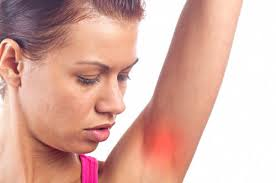 Itchy Armpits (Itchy Underarms): Common Causes and Treatment Tips