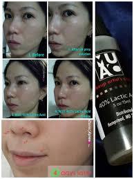 makeup artists choice lactic acid review fashiondesignlist muacs mandelic acid l